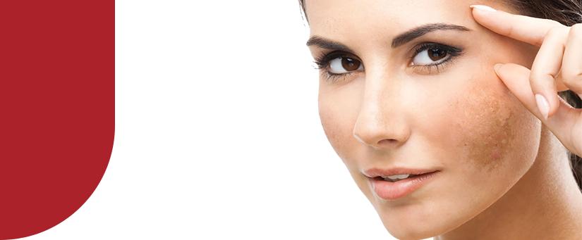 Tratamento para manchas: vantagens de combinar peeling a ativos clareadores
