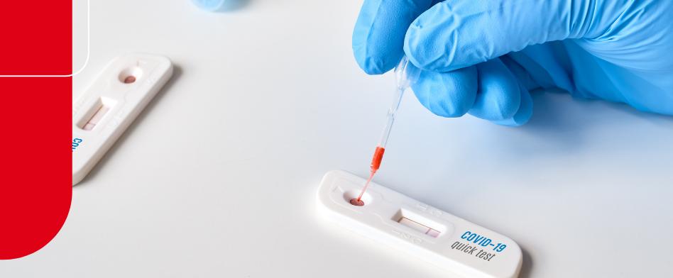 Por que oferecer o teste da Covid-19 na farmácia magistral?